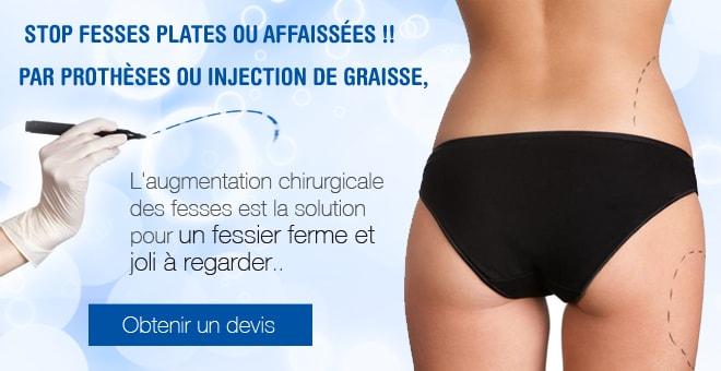 pose implant fessier Tunisie