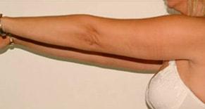 Lipoaspiration des bras