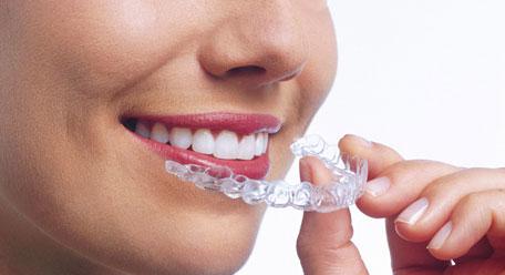 gouttiere dentaire
