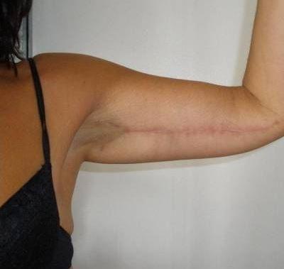 Ablation d'un excédent de peau important