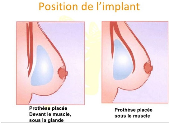 position implant