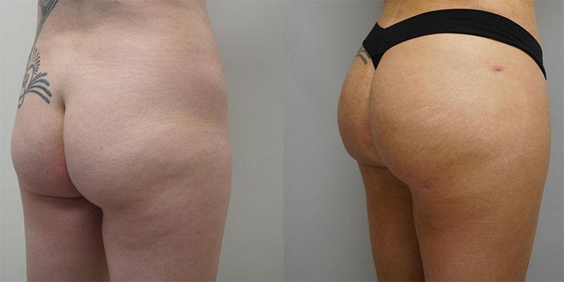 Resultat Brazilian Butt Lift fesses plates