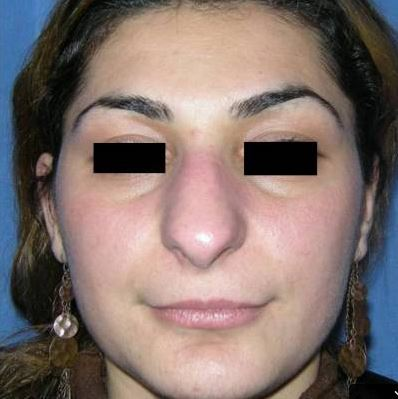 Affinement de la pyramide nasale